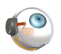 retine artificielle : implant dans l'oeil