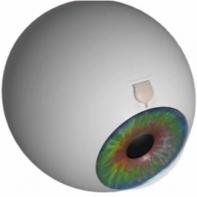 photo implant oculaire pour traiter un glaucome